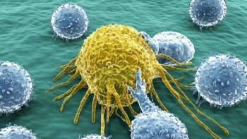 Рак фаллопиевой трубы: стадии опухоли