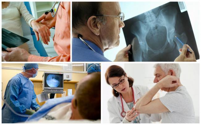 диагностика ревматоидного артрита в Израиле