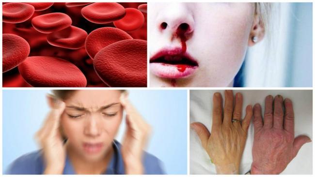 лечение эритроцитоза