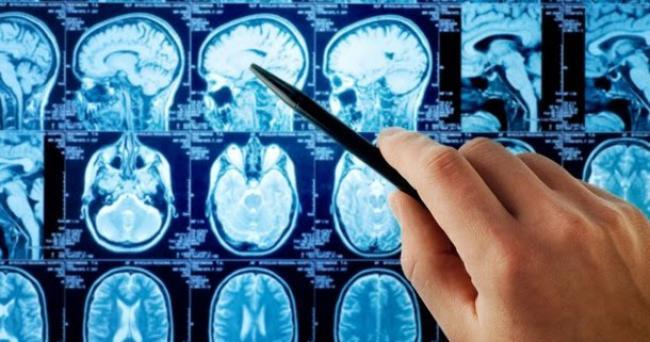 Стадии рака головного мозга